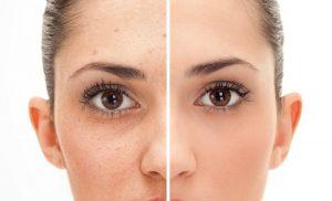acne giovanile rimedi